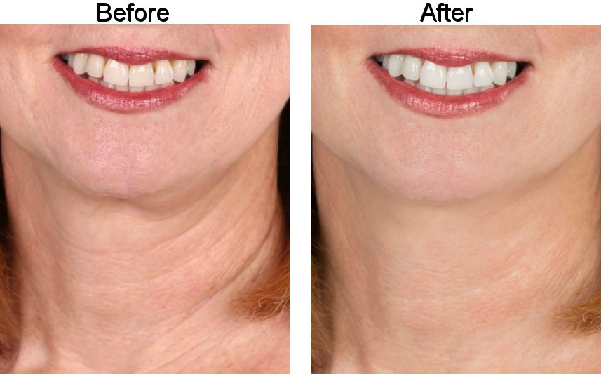 Before and After Teeth And Neck